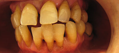periodontologia-before-dr-psychogios